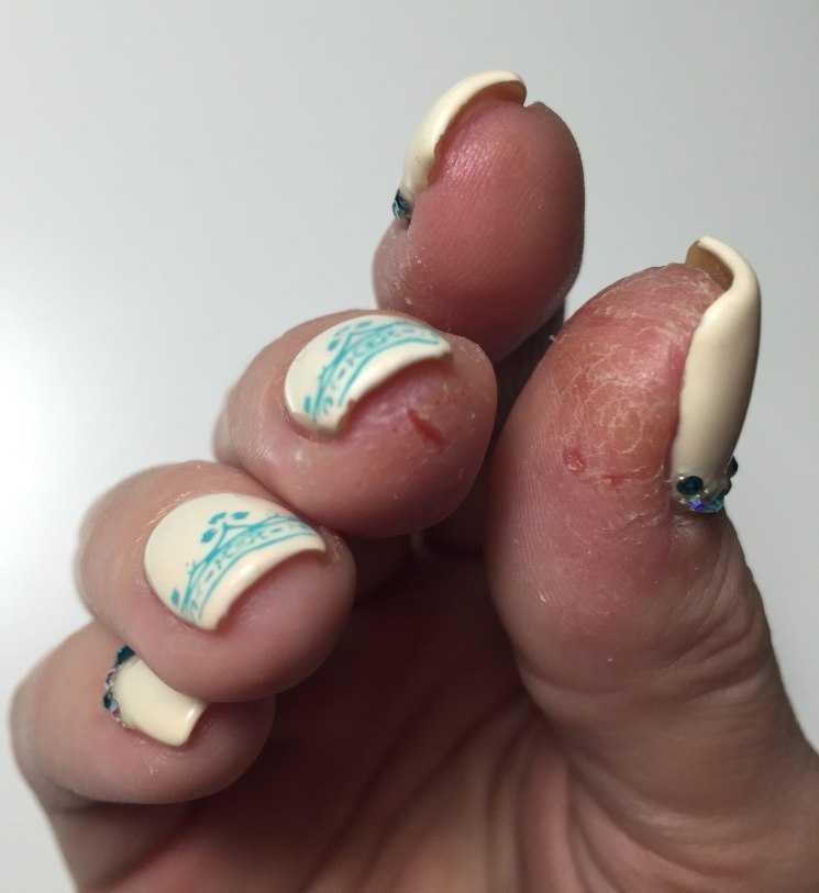 Аллергия на гель лак (на пальцах): Личный опыт. Фото, отзывы
