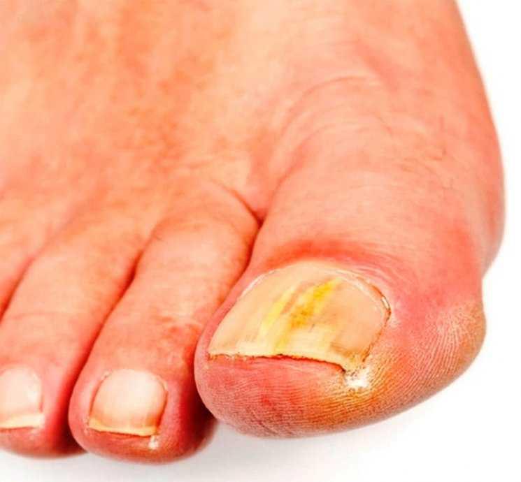 Как победить грибок ногтей у пожилого человека