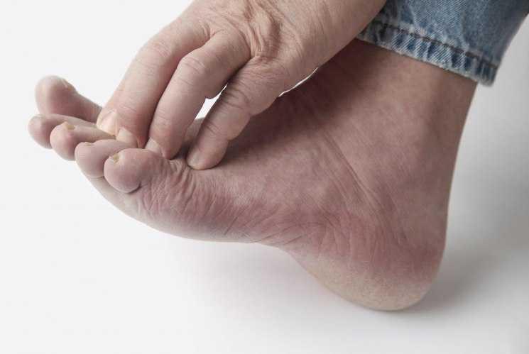 Как увидеть результат лечения грибка ногтей