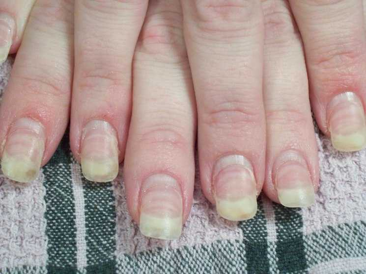 Лучшие противогрибковые препараты для ногтей
