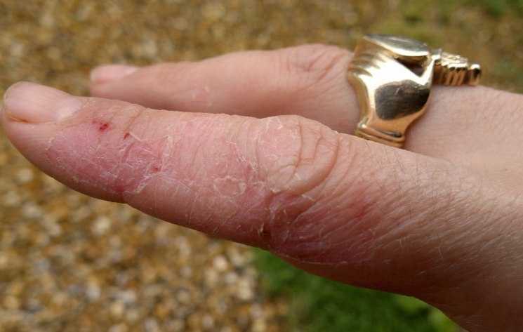 От чего лопается кожа на руках. Трещины на пальцах рук – это сигнал о болезни в организме
