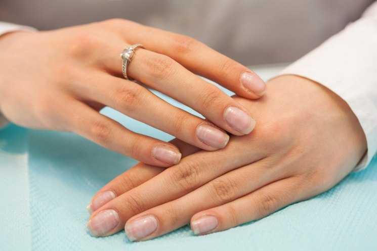 Вмятины на ногтях - 110 фото и видео описание причин появления ямок