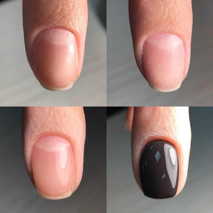 Выравнивание ногтевой пластины на руках и ногах базой, биогелем, акриловой пудрой, чтобы получить идеальные блики: пошаговая инструкция, обзор лучших средств для выравнивания
