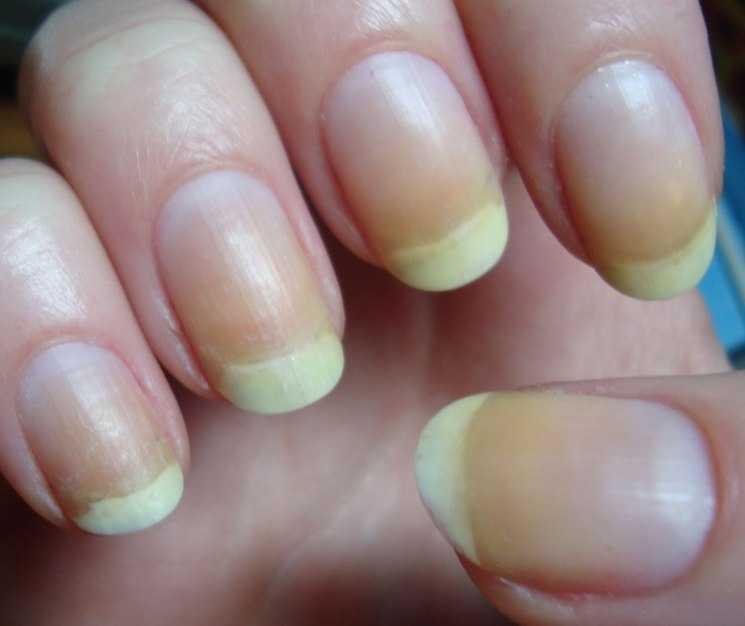 Ногти пожелтели от лака